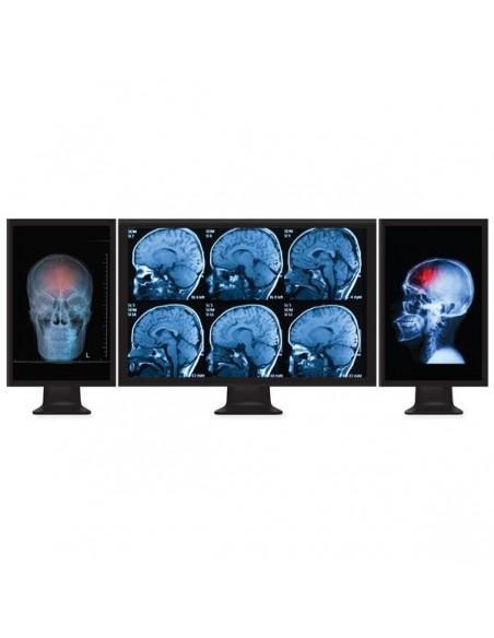 StarTech.com Mini DisplayPort to Multi-Monitor Splitter - 3-Port MST Hub Startech MSTMDP123DP - 8